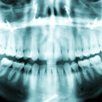 Digital X-Ray | SN Family Dental Center